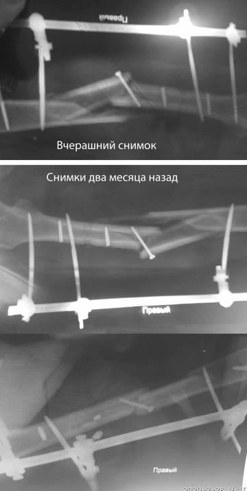 http://forumupload.ru/uploads/0001/26/83/3961/t64166.jpg